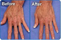 Photos of before and after hand rejuvination therapy