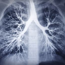 Screening for Lung Cancer in Smokers and Non-Smokers